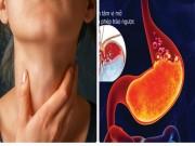 5 năm trào ngược dạ dày thực quản: giờ chỉ là quá khứ