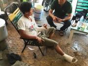Tin tức trong ngày - Thanh niên bị đuổi đánh gãy tay, chân sau va chạm xe