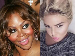 """Làm đẹp - """"Thảm họa thẩm mỹ"""" da đen bất ngờ trắng như hot girl"""
