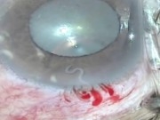 Tin tức trong ngày - Kỳ lạ: Con giun đũa chó sống trong mắt người phụ nữ