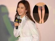 Phim - Lưu Diệc Phi chấn thương đầu gối sau khi bị fan tấn công