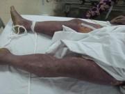 Tin tức trong ngày - Lại có bệnh nhân tử vong do ăn tiết canh lợn