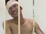 An ninh Xã hội - Thanh niên ngáo đá, khỏa thân xông vào trụ sở công an