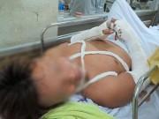 An ninh Xã hội - Vụ côn đồ vào bệnh viện chém người: Lời kể của nạn nhân