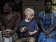 Thế giới - Nạn săn người bạch tạng lấy xương man rợ ở Malawi