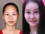 Làm đẹp - Nữ sinh Sư phạm HN siêu xinh nhờ xóa chàm trên mặt
