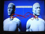 Phi thường - kỳ quặc - TQ sẽ ghép đầu người lần đầu tiên trong lịch sử