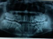 Tin tức trong ngày - Hà Nội: Nam thanh niên mọc thừa tới 13 chiếc răng