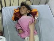 Tin tức trong ngày - Xót thương bé gái 14 tháng tuổi chỉ nặng 3,5kg vì… đói