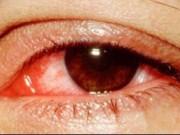 Sức khỏe đời sống - Cảnh báo dịch đau mắt đỏ vào mùa: Cách phòng và chữa bệnh