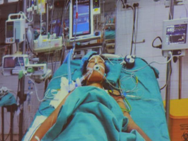 Nín thở ca phẫu thuật kéo dài 8 tiếng cho bệnh nhân có HIV - 3