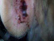 Bé 4 tuổi chảy máu tai do cô giáo mầm non… quệt tay