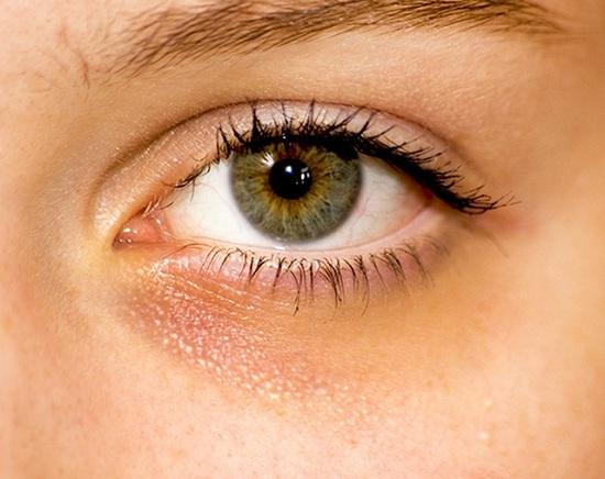 10 dấu hiệu tưởng bình thường của cơ thể nhưng báo hiệu nguy hại - 1