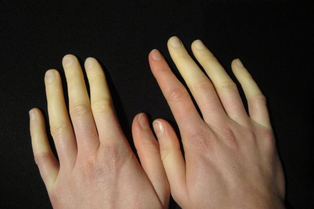 10 dấu hiệu tưởng bình thường của cơ thể nhưng báo hiệu nguy hại - 2