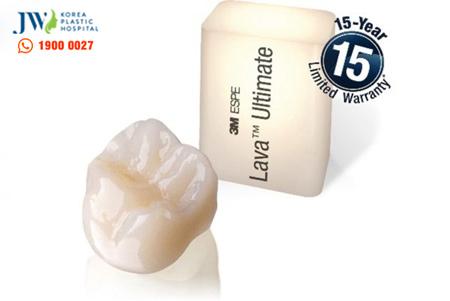 100 cơ hội làm đẹp răng miễn phí cả năm - 3