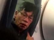 Trump bất bình vụ bác sĩ gốc Việt bị kéo lê khỏi máy bay?