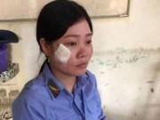 Tin tức trong ngày - Nữ nhân viên gác chắn tàu kể giây phút bị lái xe tát sưng má