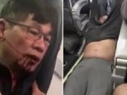 Video BS gốc Việt cự cãi trước khi bị kéo khỏi máy bay