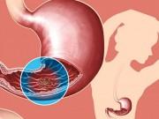 Sức khỏe đời sống - Nhóm máu tiết lộ nguy cơ bệnh tật của bạn