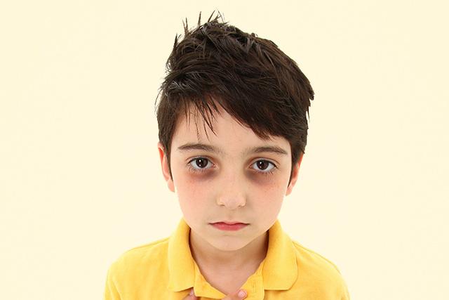 Trẻ nhỏ bị quầng thâm ở mắt cảnh báo bệnh gì? - 1