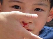 Sức khỏe đời sống - Trẻ bị chảy máu cam, cách bố mẹ vẫn làm thế này sẽ càng làm hại con