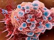 Sức khỏe đời sống - 6 bệnh ung thư hay gặp ở phụ nữ
