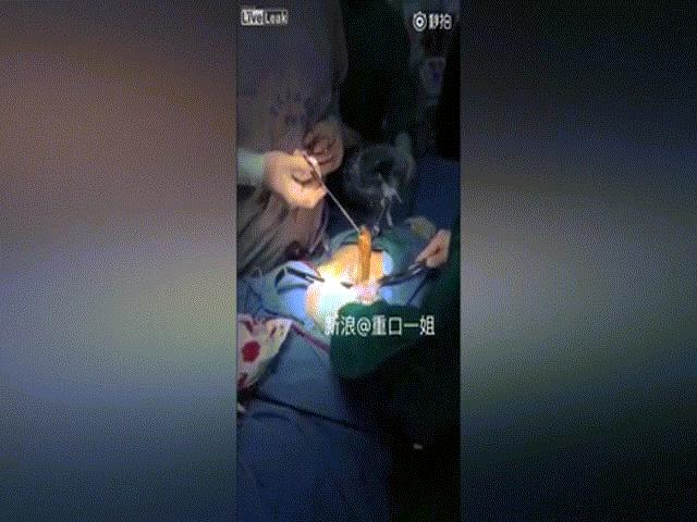 Bác sĩ kéo lươn khổng lồ ra khỏi bụng bệnh nhân