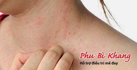 Phác đồ điều trị bệnh mề đay tái phát hiệu quả từ BV Da liễu TW - 1