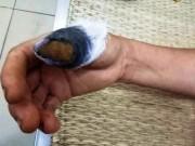 An ninh Xã hội - Hai người đàn bà ẩu đả, cắn nhau đứt lìa 1 ngón tay