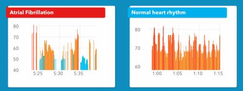 Apple Watch giúp phát hiện ra nguy cơ suy tim cực chính xác - 2
