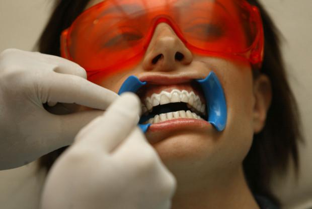 Nghệ có thể làm trắng răng như lời đồn? - 2