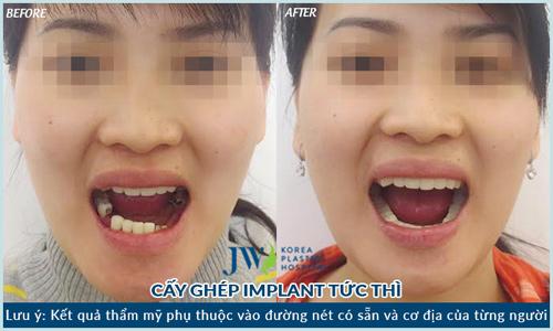 Làm đẹp răng giá siêu tiết kiệm cho học sinh, sinh viên - 3