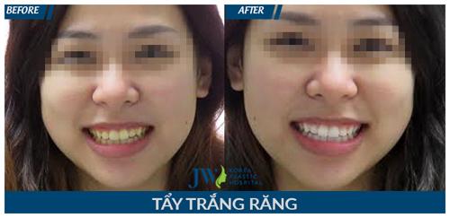 Làm đẹp răng giá siêu tiết kiệm cho học sinh, sinh viên - 4
