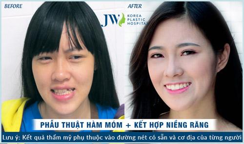 Làm đẹp răng giá siêu tiết kiệm cho học sinh, sinh viên - 5