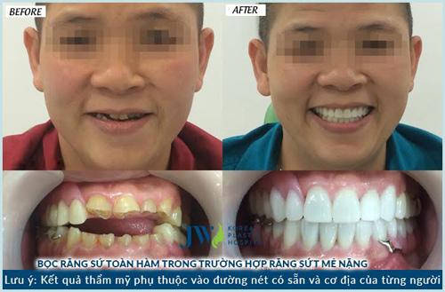 Làm đẹp răng giá siêu tiết kiệm cho học sinh, sinh viên - 6