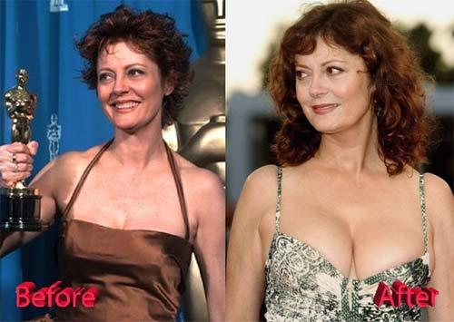 """Quý bà Hollywood 71 tuổi trẻ đẹp phồn thực nhờ """"chuyện ấy"""" - 2"""