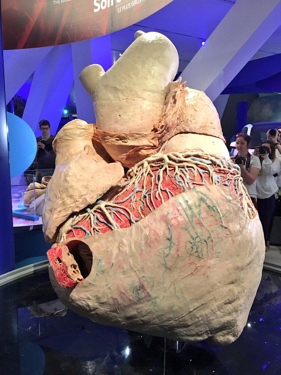 Ngắm quả tim cá voi khổng lồ to như ngựa ở Canada - 1