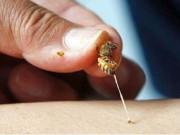 Tin tức trong ngày - Phun thuốc vườn, bị ong đốt 130 mũi vào đầu nguy kịch