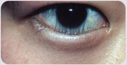 Ca mổ mắt của bác sĩ Việt giúp cô gái Mỹ thoát nguy cơ mù - 1