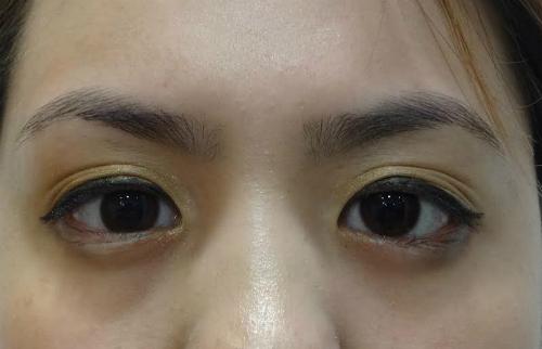 Ca mổ mắt của bác sĩ Việt giúp cô gái Mỹ thoát nguy cơ mù - 2