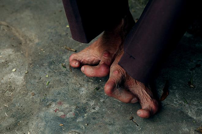 Kì lạ gia đình tay một ngón, chân như chân chim ở Hà Nam - 2
