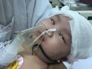 Ngã võng, bé gái 6 tháng tuổi bị chấn thương sọ não nguy kịch