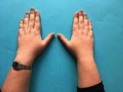 Nhìn chiều dài ngón tay đoán bệnh  '  ' chuẩn không cần chỉnh '  '