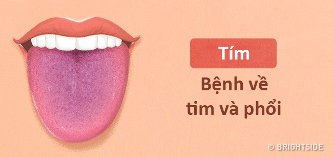 Màu lưỡi nói lên tình trạng sức khỏe của bạn thế nào? - 5