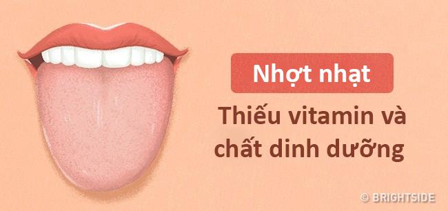 Màu lưỡi nói lên tình trạng sức khỏe của bạn thế nào? - 7