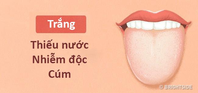 Màu lưỡi nói lên tình trạng sức khỏe của bạn thế nào? - 8