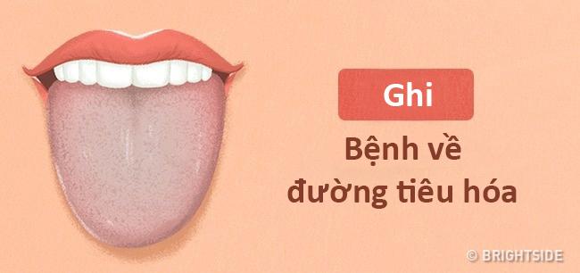 Màu lưỡi nói lên tình trạng sức khỏe của bạn thế nào? - 9