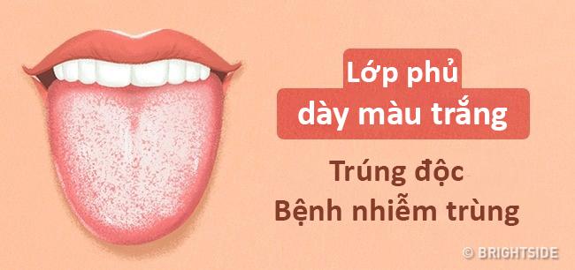 Màu lưỡi nói lên tình trạng sức khỏe của bạn thế nào? - 10