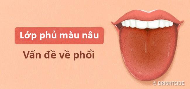 Màu lưỡi nói lên tình trạng sức khỏe của bạn thế nào? - 11
