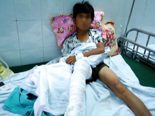 Trèo tường rào, nam sinh 13 tuổi bị hổ vồ trúng chân - 2
